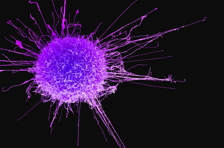Israeli company claims complete cure for cancer!