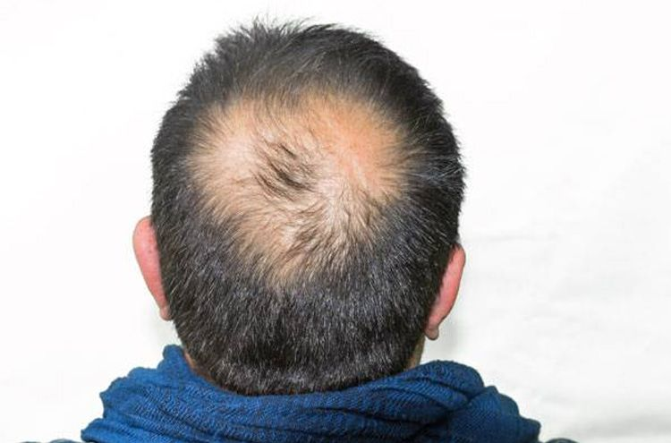 Japanese experts have discovered a unique treatment for baldness